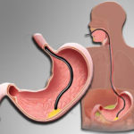 Схема эндоскопии желудка