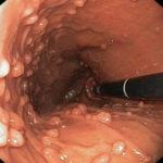 Как выглядит полипоз желудка