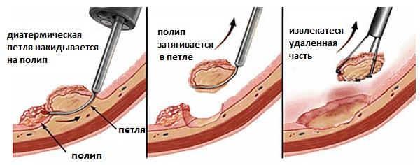 Процесс удаления полипа диатермической петлей