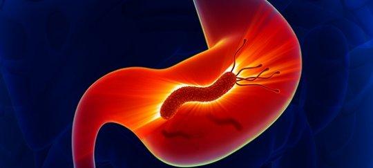 Эрозивный бульбит симптомы и лечение